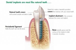 implant1-1